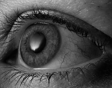 54 - Eye